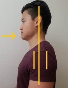 Neck alignment